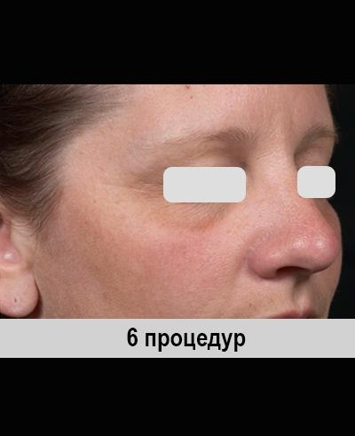 Аппарат CLEAR BRILLIANT лазер. Косметологическое оборудование для салонов красоты и клиник. Компания Премиум Эстетикс.