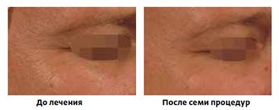 Инновационная платформа для коррекции возрастных изменений кожи