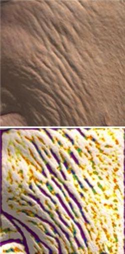ANTERA 3D. Прибор для анализа и эффективности косметологических процедур. Премиум Эстетикс.