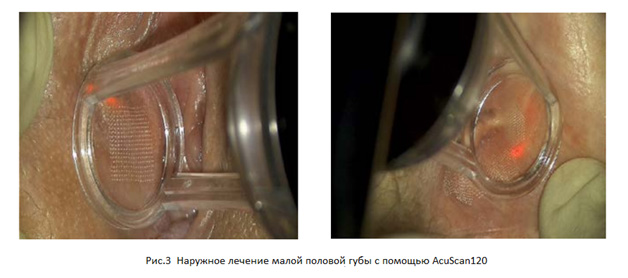 """Применение CO<sub>2</sub>-лазеров у пациентов со склерозирующим лишаем"""" width=""""628″ height=""""278″></a></p> <p>Используемые параметры:<br /> Внешняя обработка (AcuScan120, режим Deep):<br /> Энергия: 10, Плотность: 10%.<br /> Внутреннее лечение (FemTouch):<br /> Энергия: 10, Плотность: 10%.<br /> Второй сеанс лечения проводился через 8 недель (энергия 7,5 мДж и плотность 10%). После лечения пациентка отметила, что ее кожа шелушилась и стала чувствительна к прикосновению. Через две недели после второго сеанса лечения (см. рисунок 4) пациентка была удовлетворена, она отметила облегчение симптомов, кожа в области вульвы выглядела моложе и стала более розовой.</p> <p><a href="""