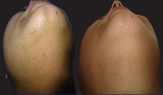 Сравнительное исследование лазеров для лечения гирсутизма