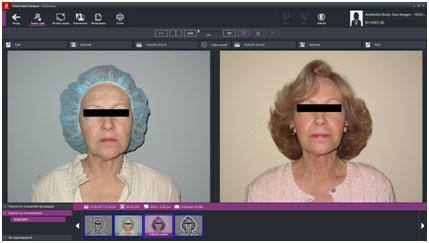 FotoFinder доставка Premium Aesthetics, премиум оборудование для эстетической косметологии