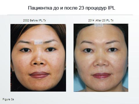 Информационное согласие на проведение процедуры фотоомоложение Микротоковая терапия Территория сдт Чайка Чебоксары