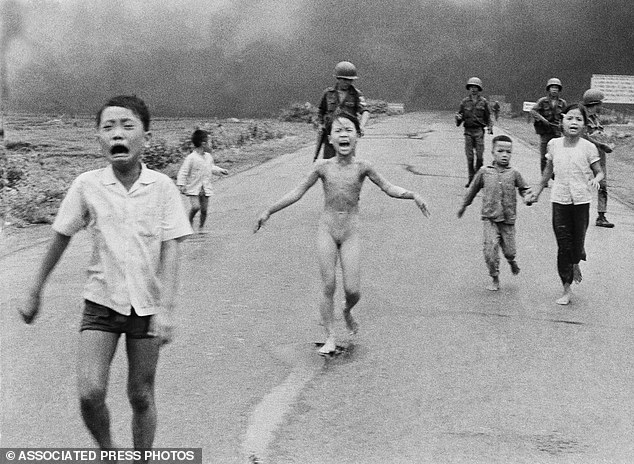 Жертва напалма во вьетнаме Ким Хук пройдет курс процедур UltraPulse