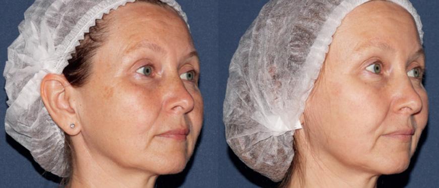 Фотографии пациентки до и после 1 процедуры IPL-терапии (M22, Lumenis)