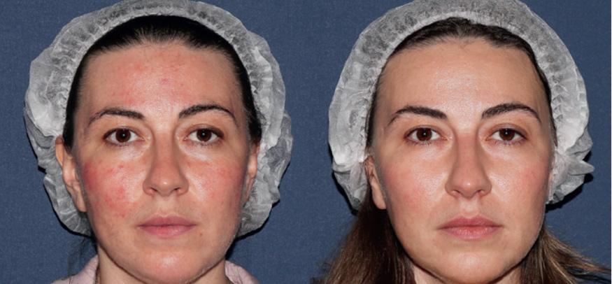 Фотография пациентки до и после 4 процедур IPL-терапии (M22, Lumenis)