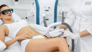 Удаление сосудов, лечение купероза