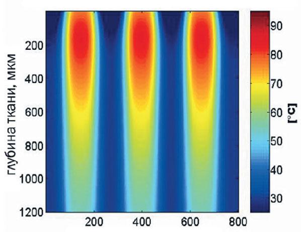Неаблятивный фракционный фототермолиз