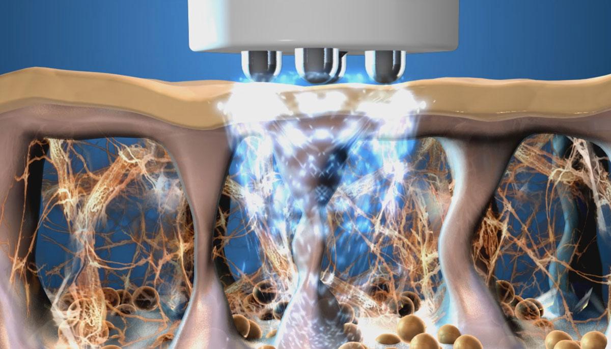 Купить оборудование с технологией RF-терапии - GeneO+, Thermage, Maximus в Premium Aesthetics