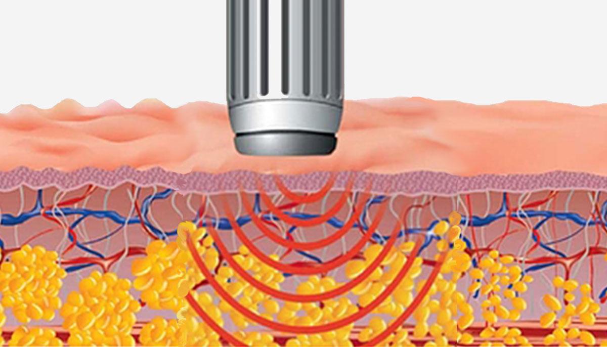 Купить оборудование для с технологией ударно-волновой терапии - Z Wave в Premium Aesthetics