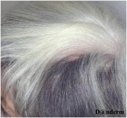 Витилиго волосистой части головы