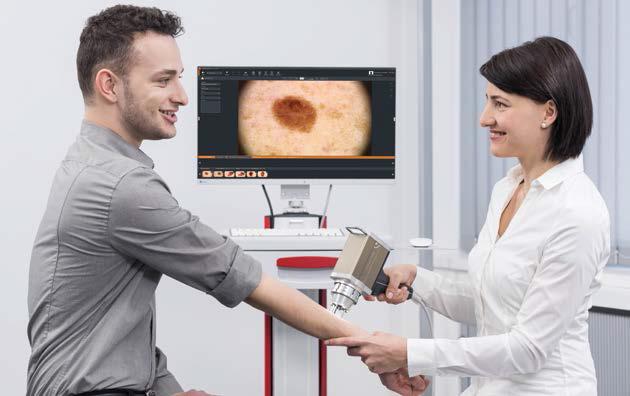 Дерматоскопия. Обследование пациента на предмет выявления рака кожи