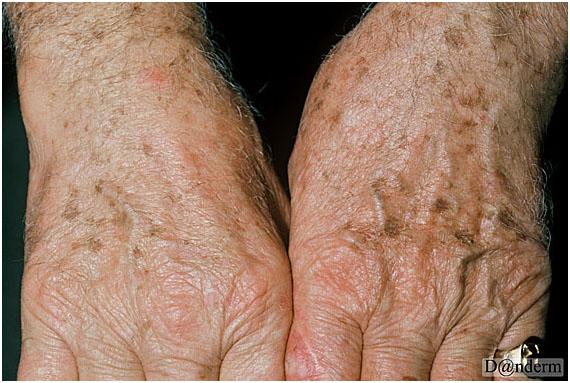 Солнечное (старческое) лентиго на возрастной коже рук