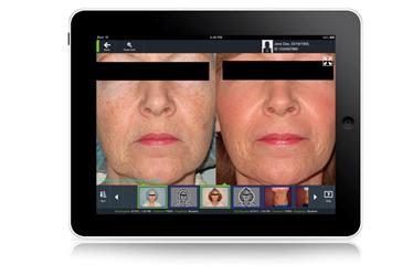 FotoFinder aesthetics купить Premium Aesthetics, премиум оборудование для эстетической косметологии