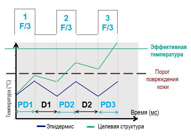 Технология последовательного мультиимпульса MSP