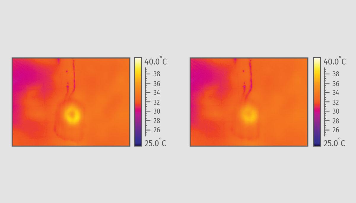 Купить оборудование с технологией индуктивного объемного нагрева - Thermage в Premium Aesthetics