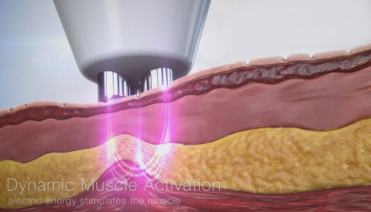 Купить оборудование с технологией динамической мышечной активации DMA - Maximus в Premium Aesthetics
