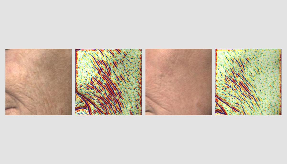 Купить оборудование с технологией поверхностного сканирования - Antera 3D в Premium Aesthetics