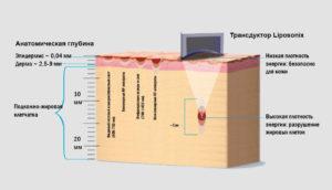 HIFU высокоинтенсивный фокусированный ультразвук