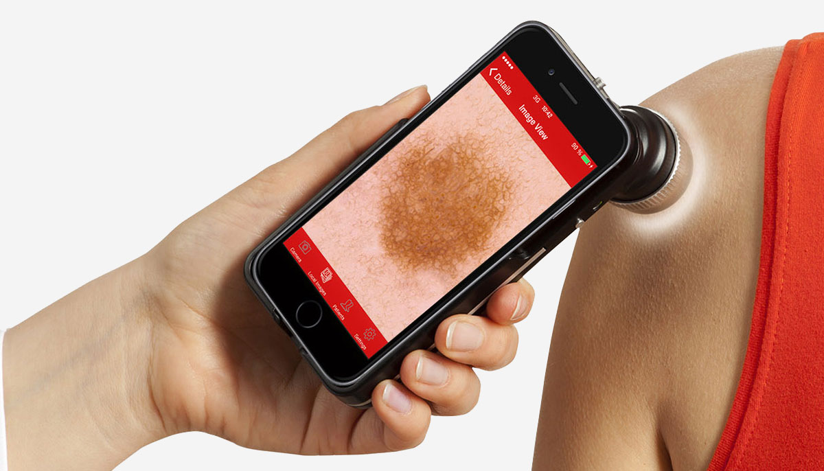 Купить оборудование для дерматоскопии - FotoFinder dermoscope Vexia, FotoFinder ATBM bodystudio, FotoFinder aesthetics в Premium Aesthetics