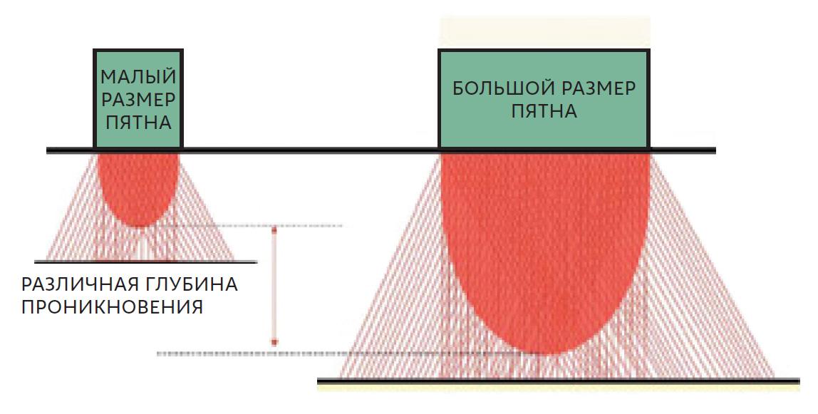 Лазерная эпиляция. Схема распространения излучения в коже с учётом рассеяния