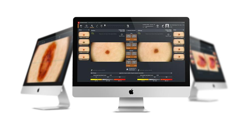 FotoFinder лучшие цены Premium Aesthetics, премиум оборудование для эстетической косметологии