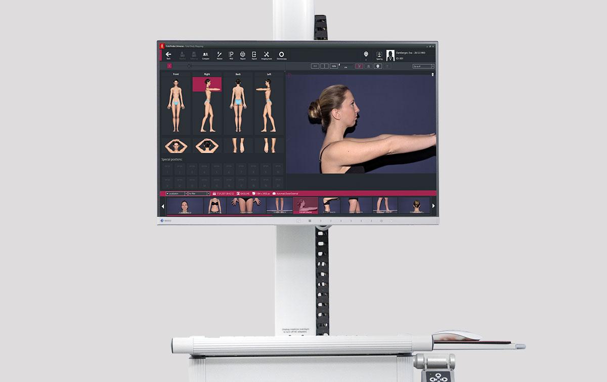 FotoFinder продажа Premium Aesthetics, премиум оборудование для эстетической косметологии