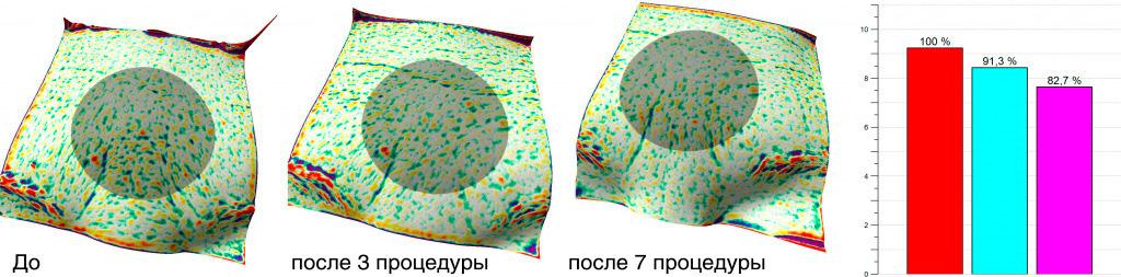 Аппаратная методика омоложения geneO+. Результат без дискомфорта
