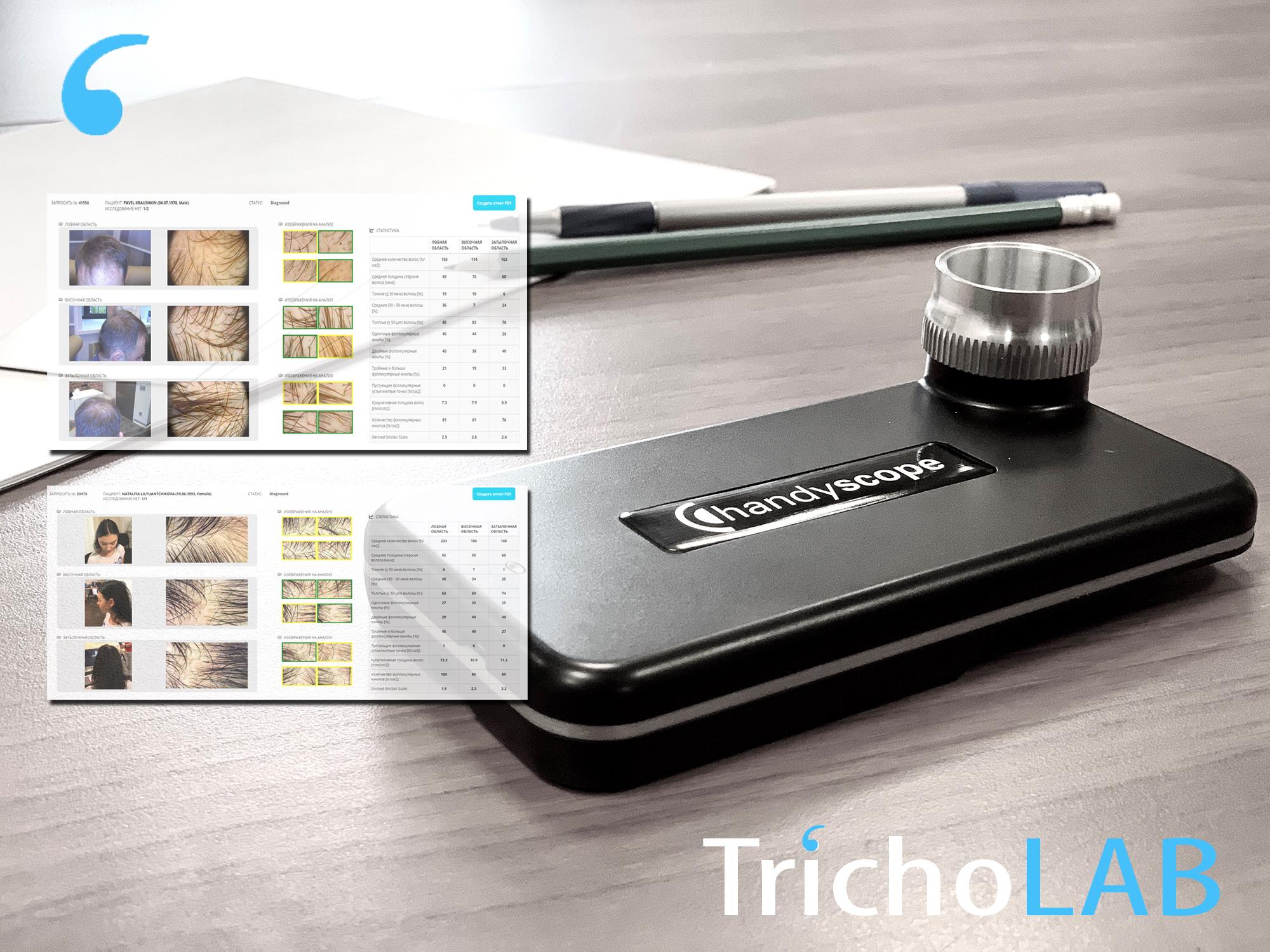 FotoFinder trichovision продажа Premium Aesthetics, премиум оборудование для эстетической косметологии