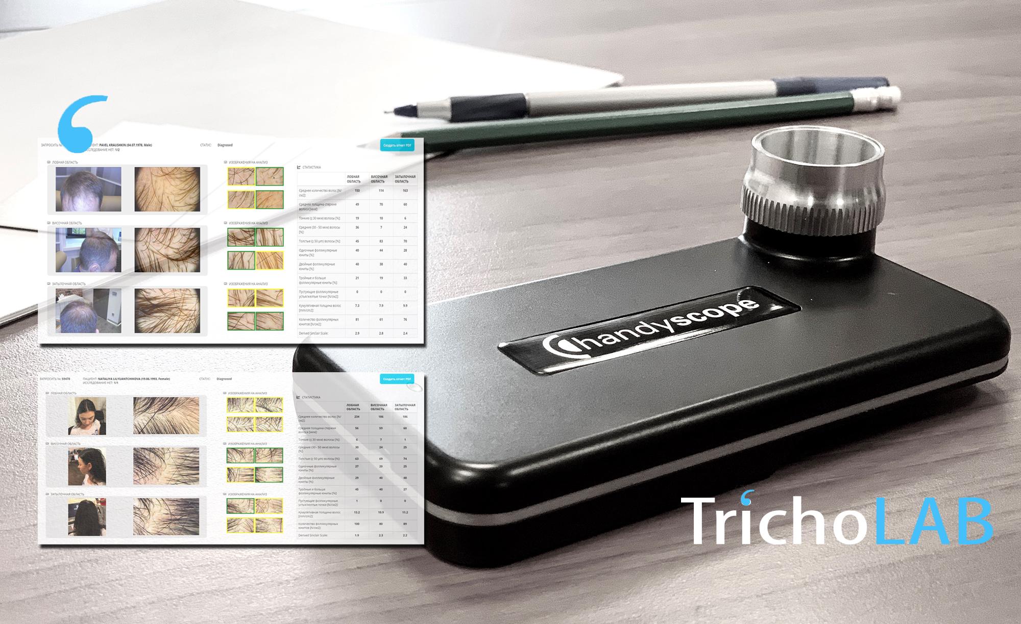 TrichoLAB - цифровой диагностический сервис для трихологов