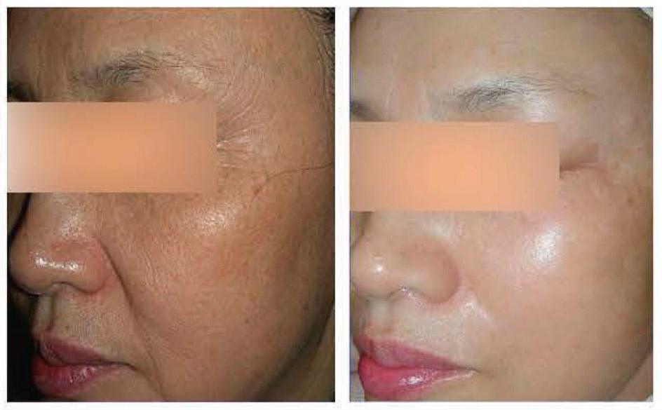 Фото. Состояние кожи лица пациентки: а - до процедуры , б - после двух сеансов TriPollar RF. Для устранения возрастной гиперпигментации дополнительно применялся фракционный фототермолиз