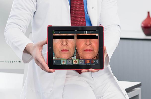 Фотографии до и после IPL-терапии, выполненные комплексом FotoFinder