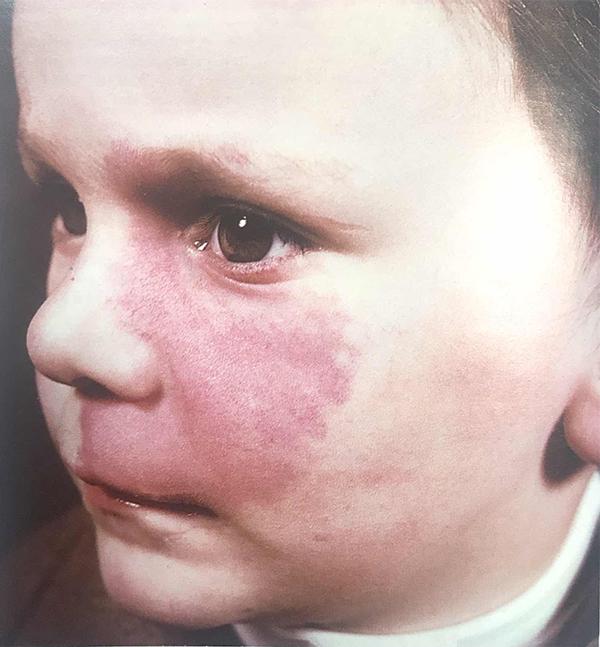 Винные пятна (пламенеющий невус) у ребенка