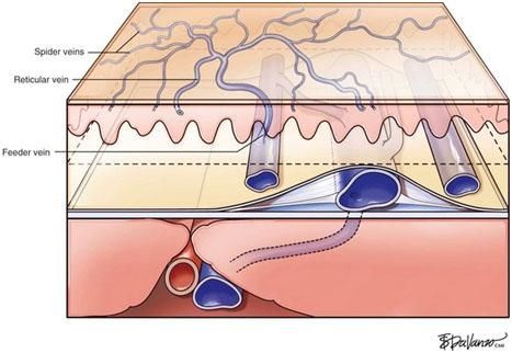 Схематичное изображение поверхностных вен (spider veins)