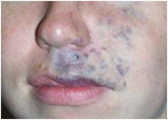 Глубоко залегающие сосуды - венозная мальформация на лице