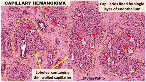 Глубоко залегающие сосуды - гистологическая картина капиллярной гемангиомы