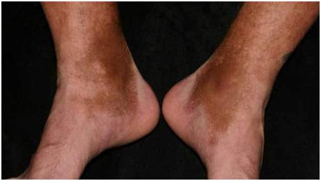 Посттравматическая гиперпигментация на ногах из-за повреждения сосудов