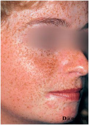 Множественные эфелиды (веснушки) на лице