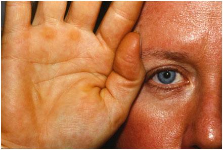 Аномальные пигментации кожи, проявления заболевания, методики лечения на аппарате M22