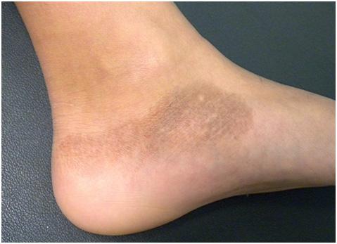 Глубокие пигментации - поствоспалительная гиперпигментация на ноге