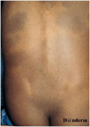 Глубокие пигментации - врожденный дермальный меланоз