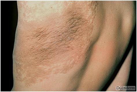 Глубокие пигментации - меланоз Беккера