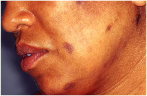 Очаги поствоспалительной гиперпигментации на лице