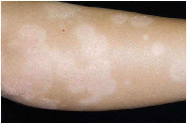 Множественные очаги поствоспалительной гипопигментации на руке
