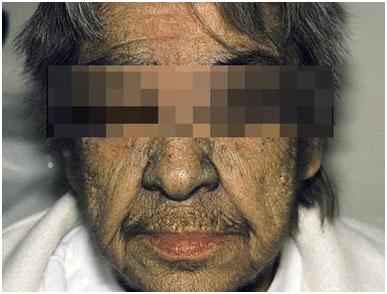 Причины возникновения гирсутизма, аппаратные методики удаления волос лазерами и IPL-устройствами