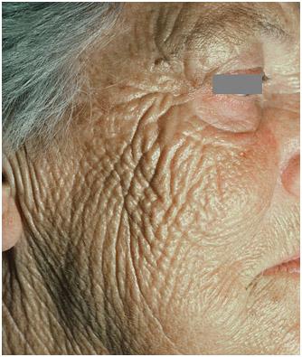 Фотостарение кожи лица