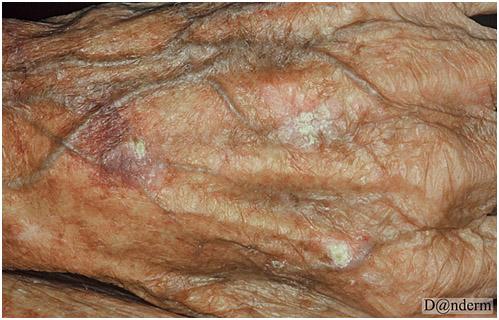 Фотостарение кожи кисти