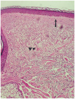 Гистологические признаки эластоза A