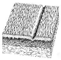 Мелкие морщины - изменение текстуры кожи B
