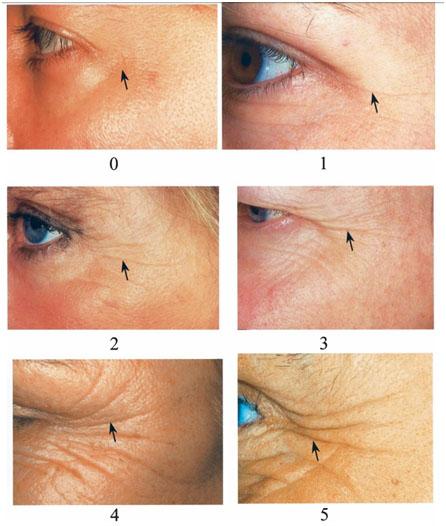 Морщины вокруг глаз (гусиные лапки) по степеням от 1 до 5